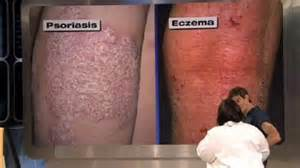 Spot The Difference Eczema Versus Fungal Skin Infection » Home Design 2017