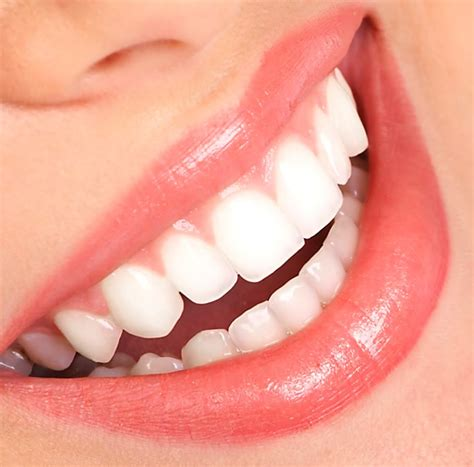 Exercising Teeth The Way teeth whitening the dentist hornsbythe dentists hornsby