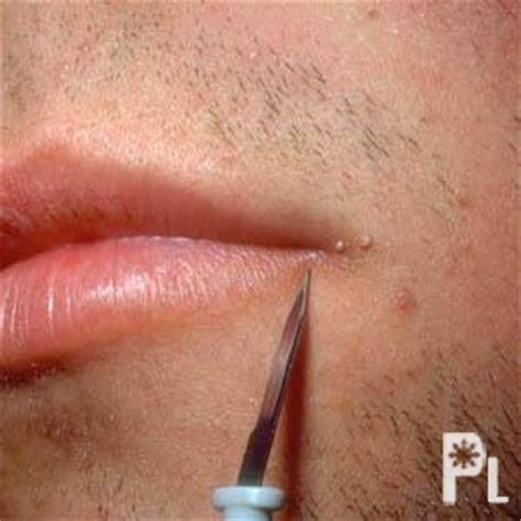 imagenes verrugas vulgares genitales pin genital warts facts symptoms prevention photos on