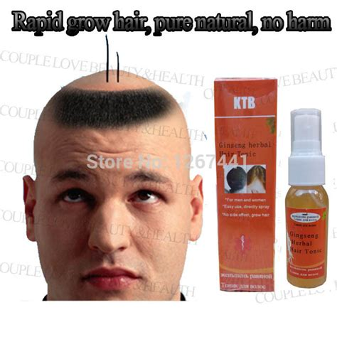 how to regrow african american temple hair regrow hairline black men best regrow hair for men photos