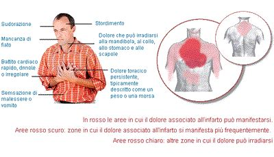 sintomi infarto sette segni per riconoscere un attacco introduzione ospedali galliera