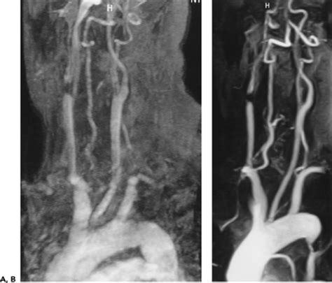 Three Dimensional Contrast Enhanced Mr Angiography Of Aortic Dissection A Pictorial Essay by Aorta Arch Vessels And Great Veins Thoracic Key