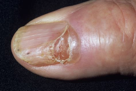 Nail Problems by Nail Diseases
