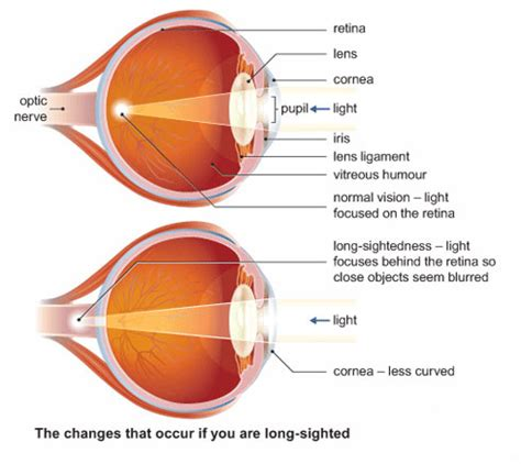 can laser eye surgery cure long sightedness (hyperopia)?