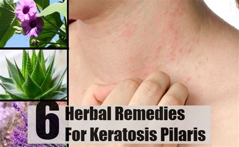 6 keratosis pilaris herbal remedies treatments