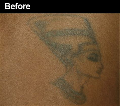 tattoo removal black skin before after laser removal before and after pictures wifh