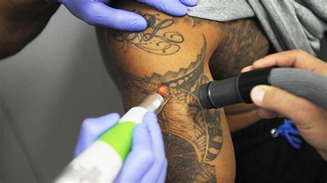 tattoo removal north west laser removal on the rise as stats say one in three