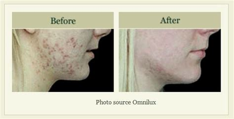 dermatology blue light treatment blu u blue light photodynamic acne therapy winston salem