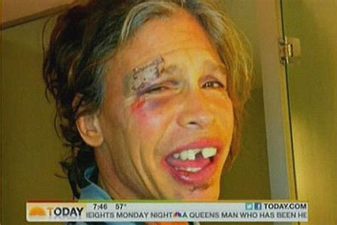 broken thing of the day steven tyler s face