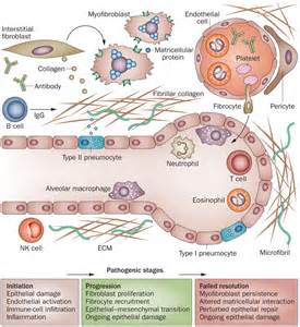 new cellular and molecular mechanisms of lung injury and cellular pathogenesis of fibrotic lung injury