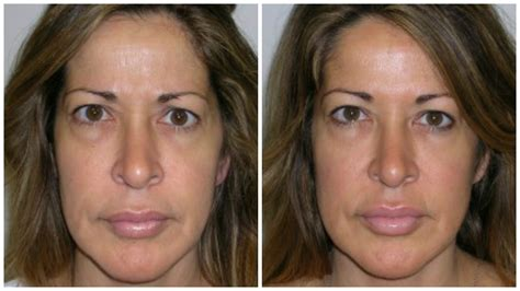 50 year old women before and after 10 ways to look younger without surgery zwivel newsroom
