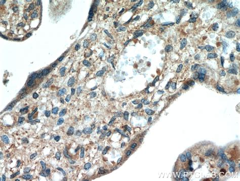 Tissue Europa 1 neuron navigator 1 antibody 20807 1 ap proteintech