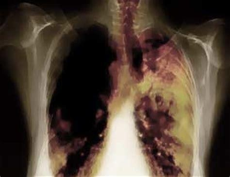 Obat Kanker Paru Paru Tbc Cairan Paru Paru Flek Paru Paru Sarang Semut ciri penyakit kanker paru paru obat paru paru basah
