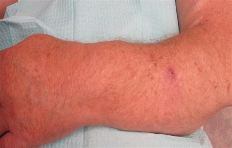 acroangiodermatitis  mali  stewart bluefarb syndrome