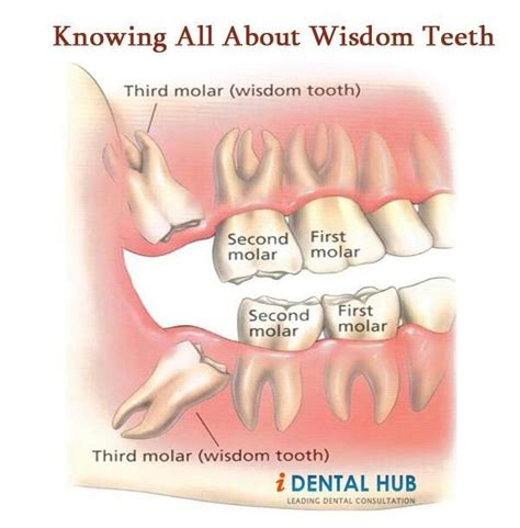 wisdom tooth are the last to erupt in cavity they