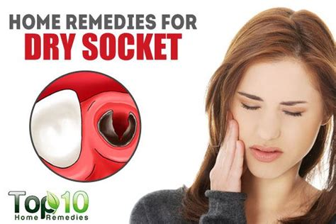 home remedies for socket top 10 home remedies