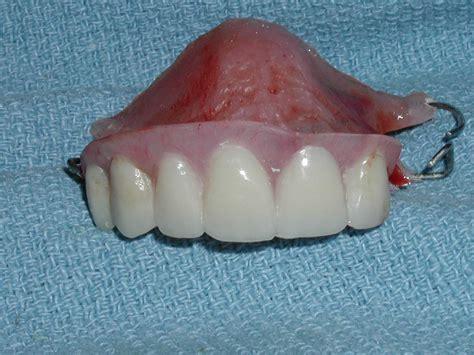 front flipper flipper dr paul caputo comprehensive dentist palm harbor