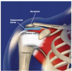 Shoulder impingement syndrome st mary s center for orthopaedics