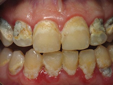 negative effects  poor oral hygiene