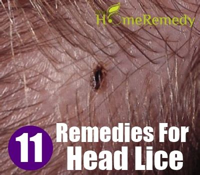 11 home remedies for head lice natural treatments & cure