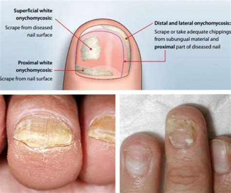 Fungal Nail Infection Pictures