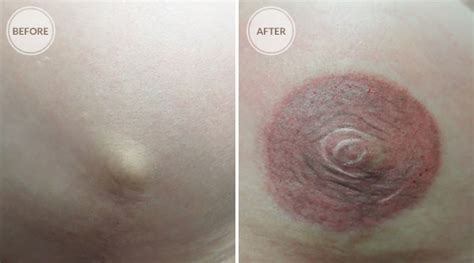 nipple tattoo reconstruction nz nipple tattoo reconstruction pictures 3d areola
