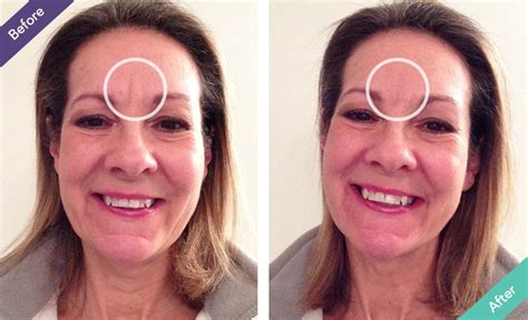 ho to disguise frown lines best wrinkle filler for frown lines worryless smile more