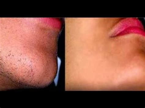 what to do with hair on womans jaw line home remedies to remove facial hair permanently youtube