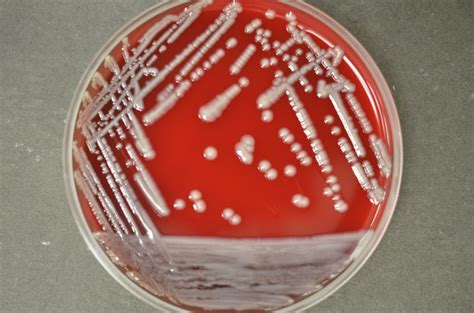 Klebsiella Oxytoca In Stool Culture by Klebsiella Pneumoniae Has Colonies That Look Like Snot