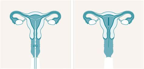 mirena iud diagram druhy antikoncepce encyklopedie womenzone cz
