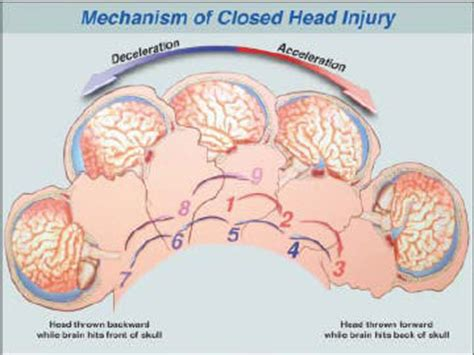 can swinging baby cause brain damage concussion information brain trauma de caro kaplen llp