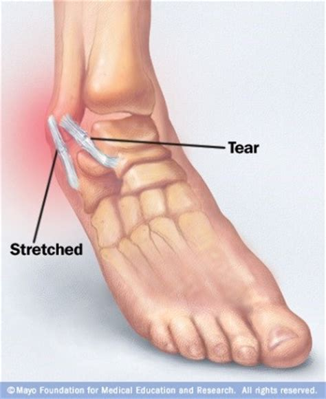 sprained ankle joint sprain what is a sprain orthobalance physical therapy