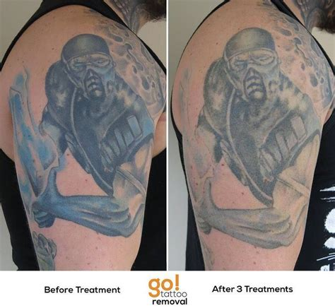 tattoo removal allentown pa 900 best removal in progress images on