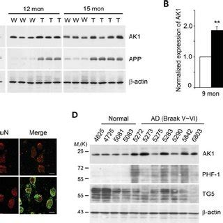 (pdf) neuropathogenic role of adenylate kinase 1 in a