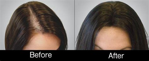 before snd after picture of hair growth in eonen hair loss restoration kohll s pmc