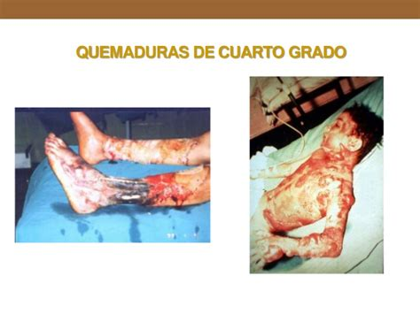 imagenes reales de quemaduras de primer grado quemaduras