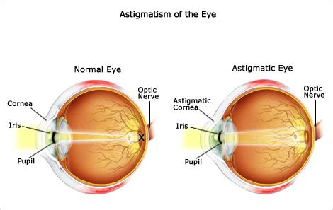 acuvue oasys for astigmatism | lens saver