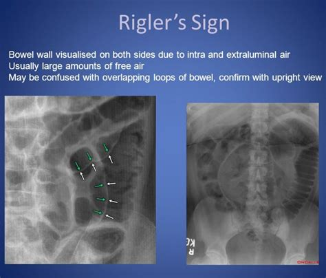 Cupola Sign Radiology by Rigler Sign Pneumoperitoneum Radiology Radiology