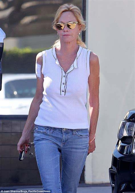 melanie griffith sports bandage on her arm as she begins