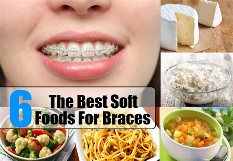 soft food the best soft foods for braces
