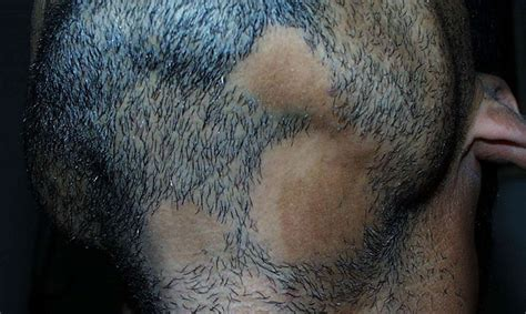 circular pattern hair loss all about alopecia barbae his hair clinic