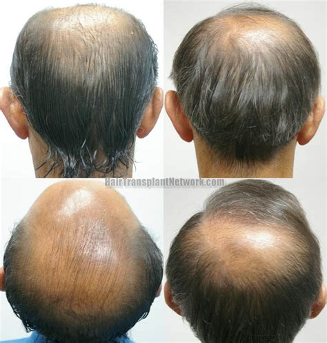 Best Type Of Hair Transplant by Hair Transplant Sessions 1 Grafts 3767 Total Hairs 8014
