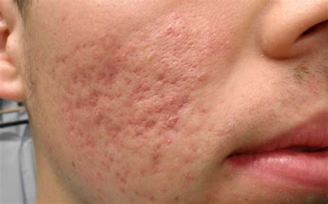 Acne Scar post acne scarring impact maine laser skin care