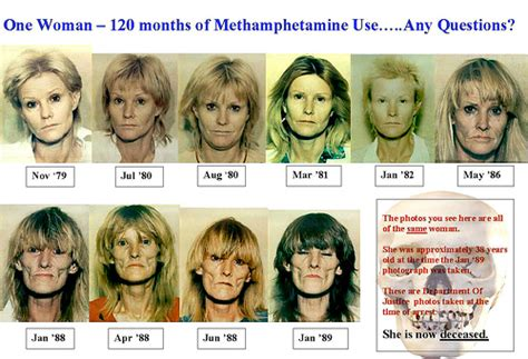 Best Home Remedy For Meth Detox by Meth Rehab And Meth Treatment Centers In California
