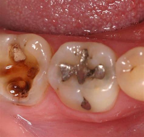 Pasta Gigi Nasa Mengobati Sakit Gigi info ilmiah pengobatan tradisional gigi berbulang