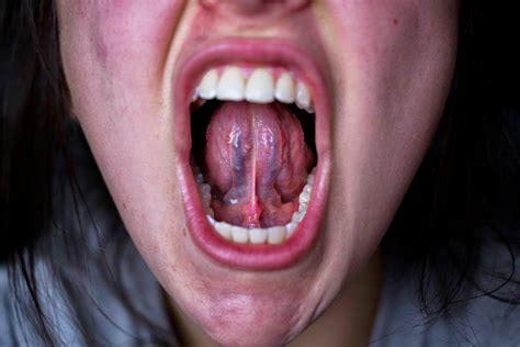 Bumps On Floor Of Tongue by Healthy Tongue Gallery