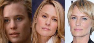 robin wright penn neck surgery elle mcpherson plastic surgery before and after pictures 2017