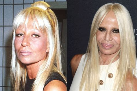 11 classic hollywood stars who had plastic surgery vintage everyday celebrity plastic surgery shockers