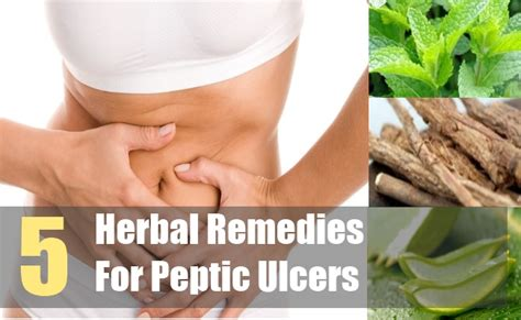5 herbal remedies for peptic ulcers peptic ulcers