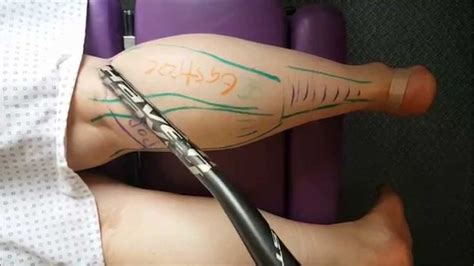 tattoo nerve pain the 25 best calf anatomy ideas on pinterest calf muscle